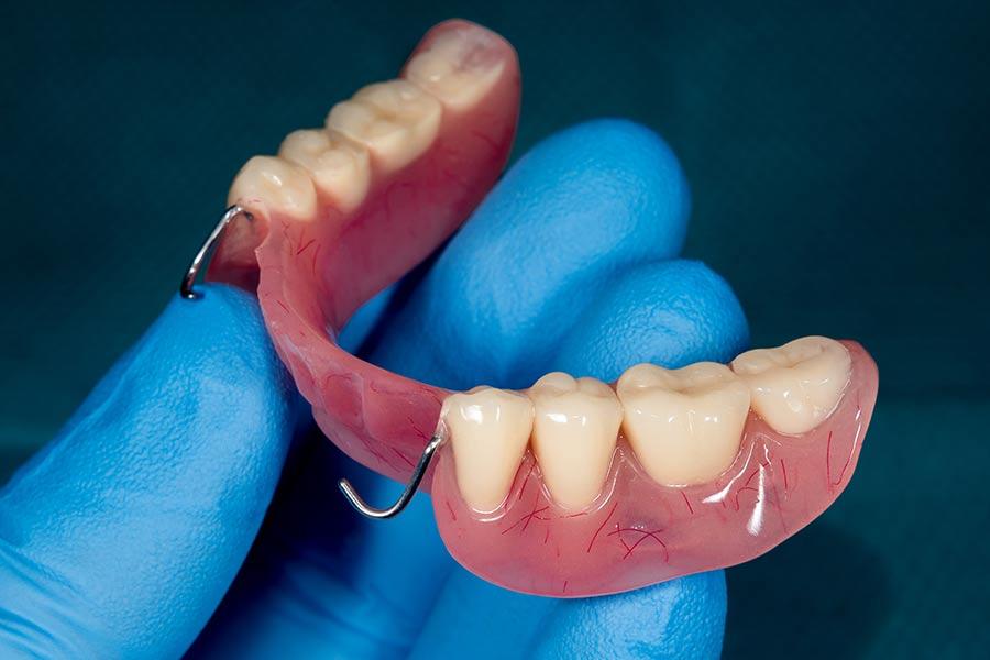 Prothèses amovibles dans le canton de Saint-Lô : un dispositif médical partiel ou complet à Agneaux (50) | Laboratoire Jehenne - Marais